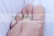 sole-mans-foot-showing-water-blisters-created-by-walking